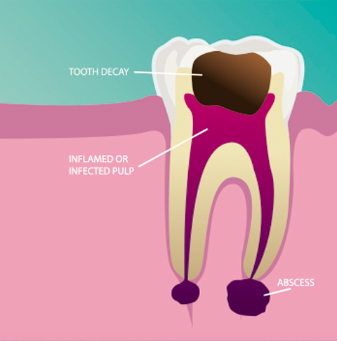 dentalprocedure_rootcanalimage1