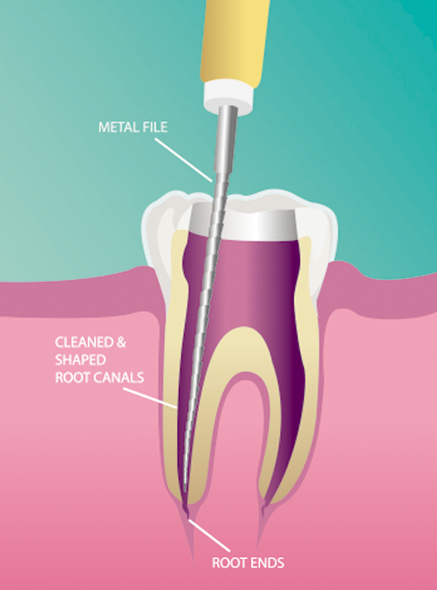 dentalprocedure_rootcanalimage2