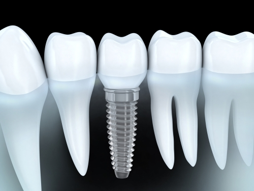 Dental-Implants web
